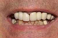 close-up of patient's smile before treatment
