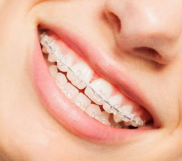 Florham Park Clear Braces