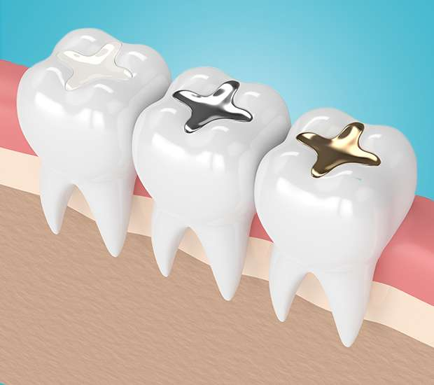 Florham Park Composite Fillings