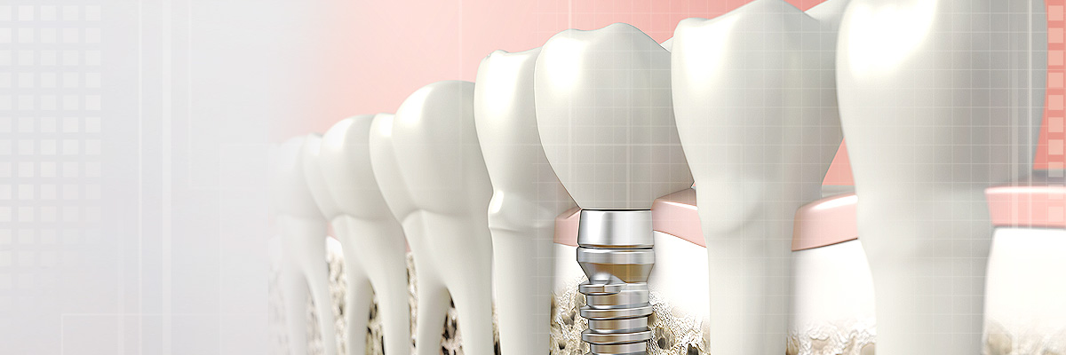 Florham Park Crowns vs. Implants
