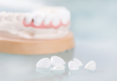 Dental Crowns That Keep Your Teeth And Gums From Graying