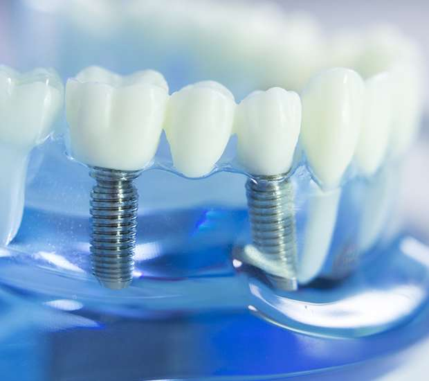 Florham Park Dental Implants