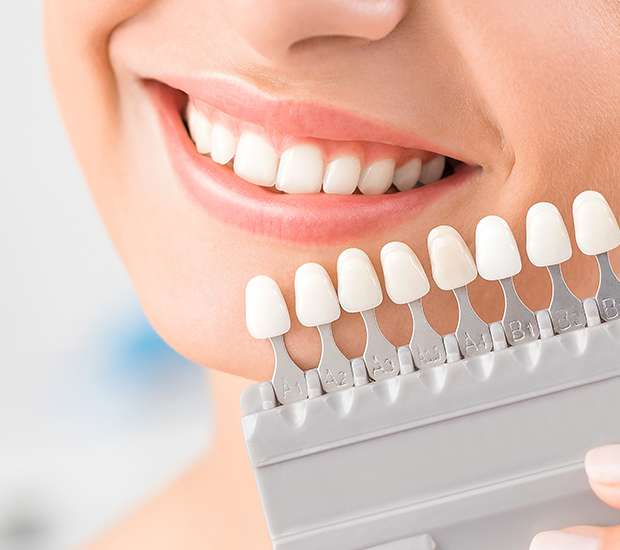 Florham Park Dental Veneers and Dental Laminates