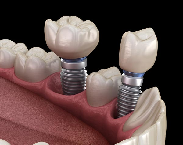 Dental Implants: Replace Your Missing Teeth