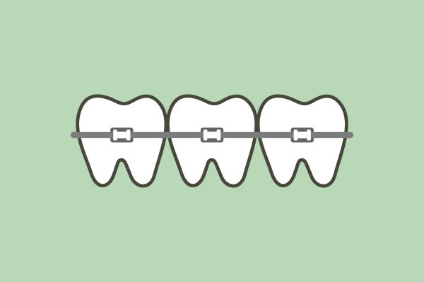 Invisalign Or Traditional Braces, Which Should I Choose?
