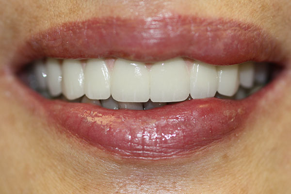 close-up of patient's smile after intraoral treatment