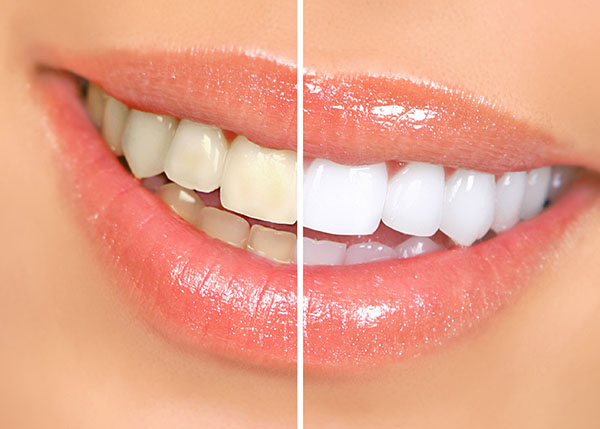 Learn About Professional Teeth Whitening Brands