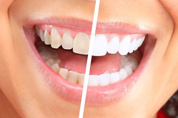 Things You Should Know From Us At Florham Park About Teeth Whitening Products Before You Use Them