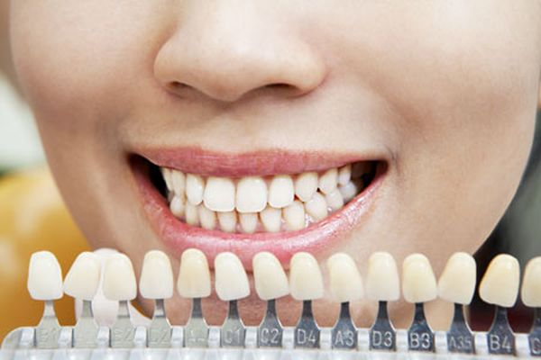Veneers Dentist